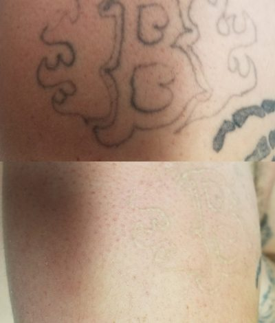 Get your last laser tattoo removal treatment free Mention this deal when signing in. Find our deal on Usemydeal.com